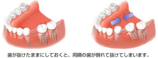 インプラント治療の目的(リスク).jpg