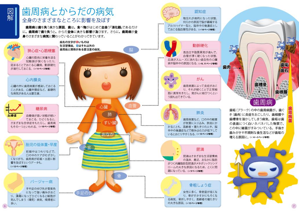 歯周病と全身健康【全体図】.jpg