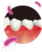歯周病治療基本01.jpg